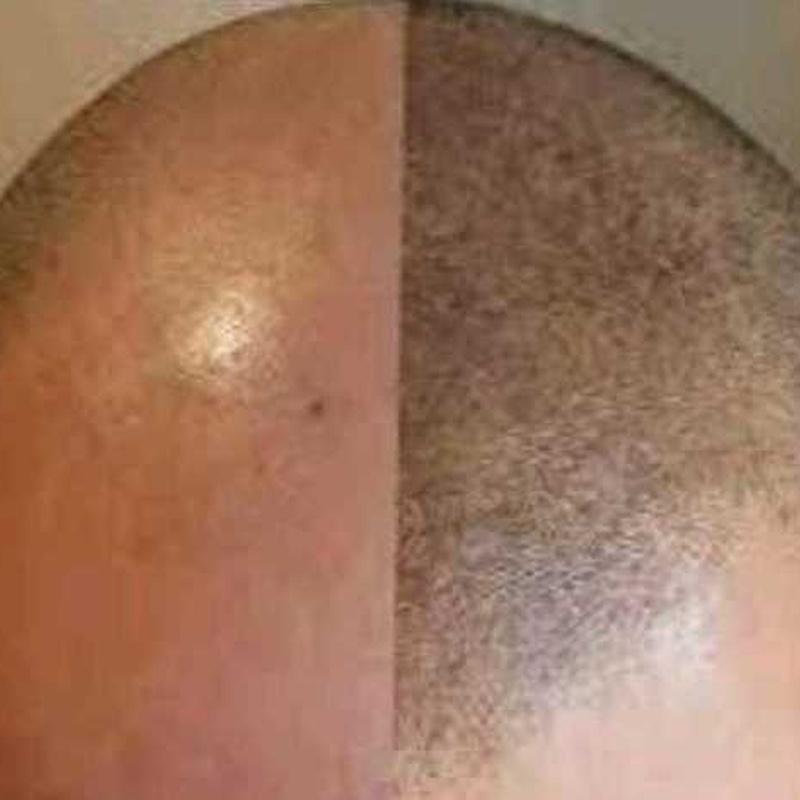 Curso. Micropigmentación capilar (Tricopigmentación): Servicios de C. López