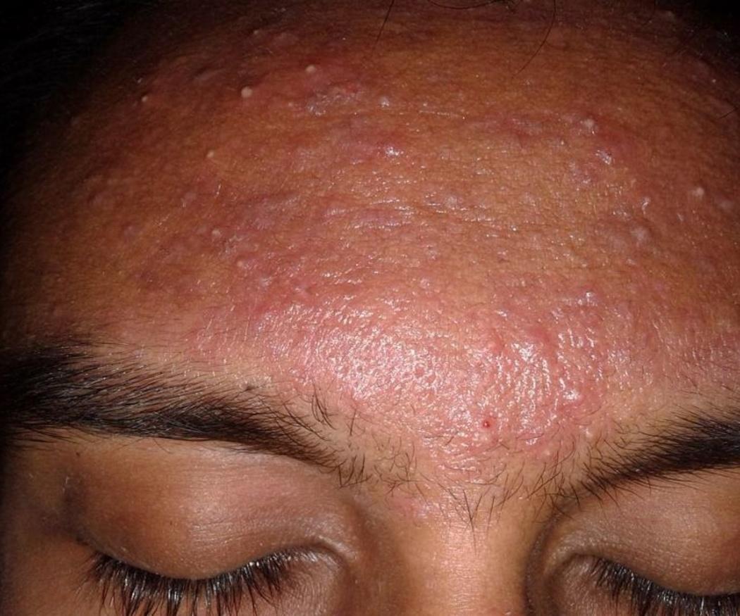 Cuida tu acné en otoño