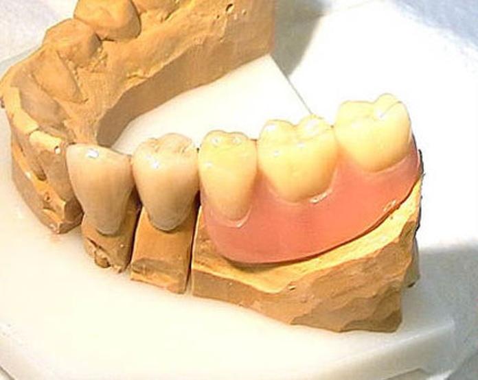 Prótesis fijas o puentes: Servicios de Clínica Dental El Carmen