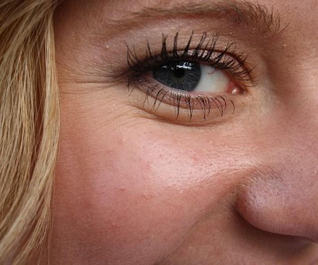 ¿Cómo afecta el sol a tu cara?