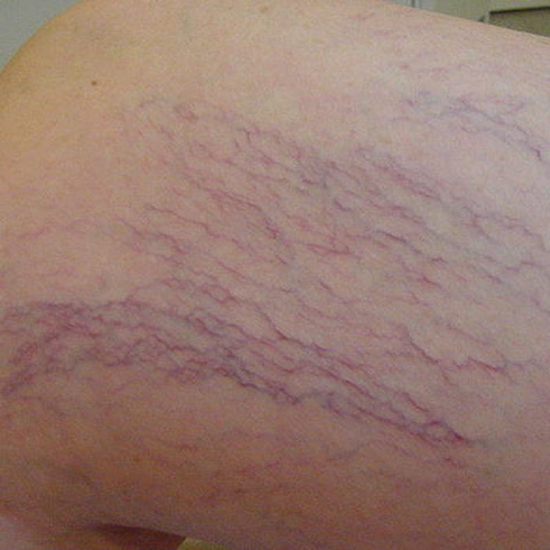 Arañas vasculares : Servicios de HI STILO