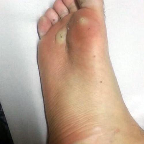 Tratamiento de callos, durezas del pie