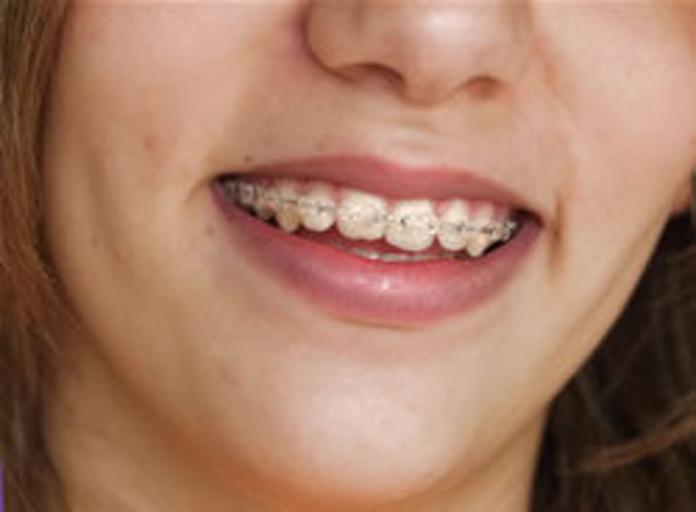 Ortodoncia: Servicios de Clínica Dental Ruisánchez