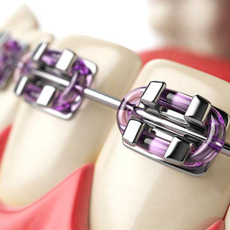 ORTODONCIA CON BRACKETS: Tratamientos de Clínica dental tres D
