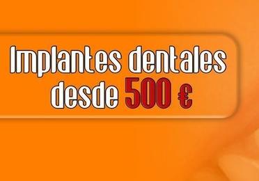 IMPLANTES DENTALES DESDE 500 €