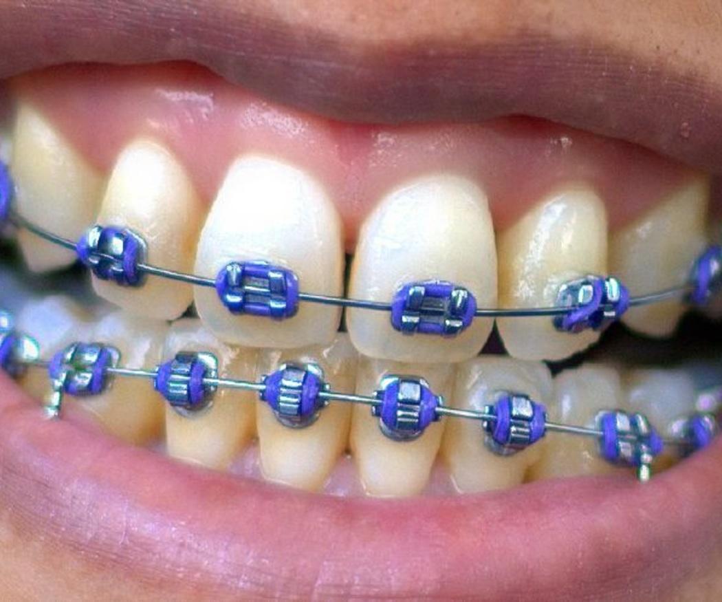 La alimentación durante la ortodoncia