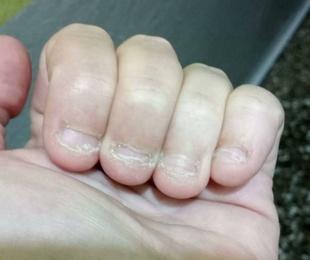 Reconstrucción de uñas mordidas