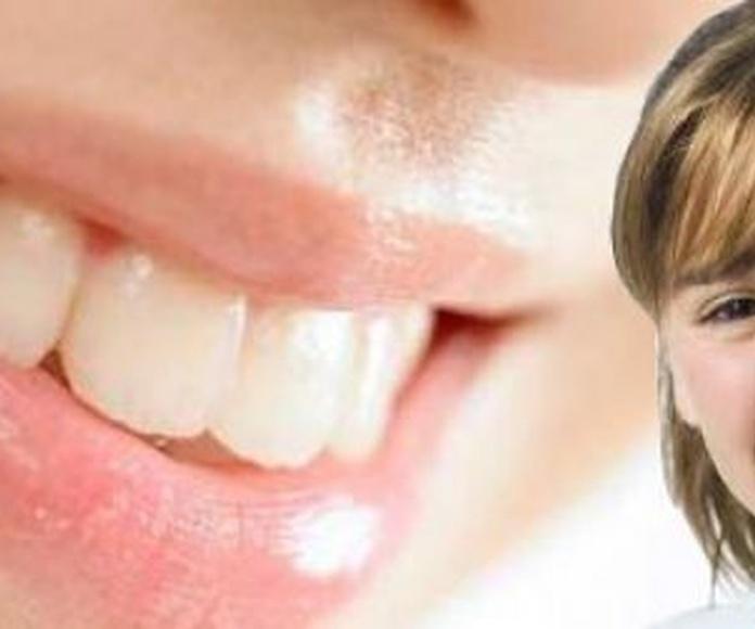 Odontopediatría: Tratamientos  de Juan Luis Alonso de Dios