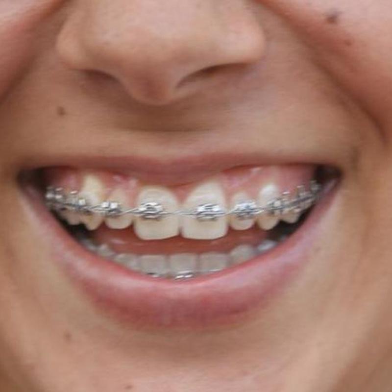 Ortodoncia: Tratamientos de Leandro Romero Esteban