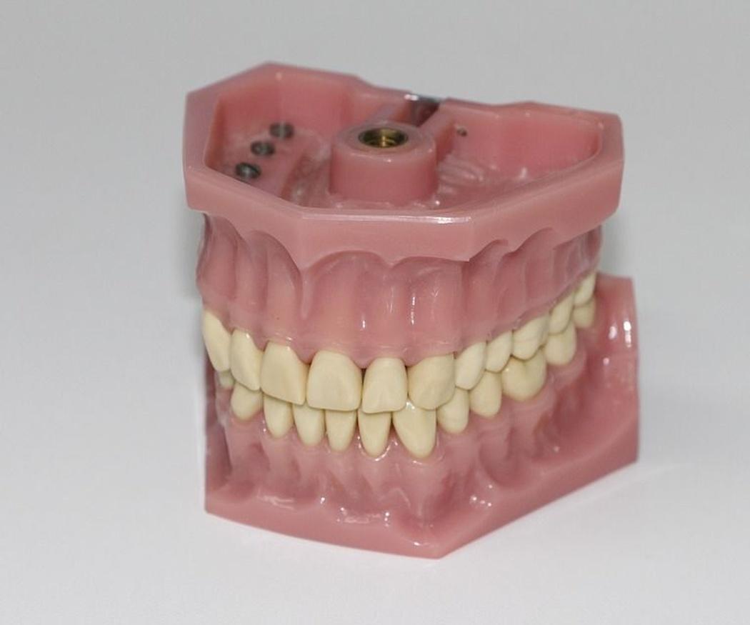 Algunos consejos para el cuidado de las prótesis dentales removibles