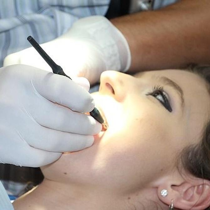 Materiales para implantes dentales