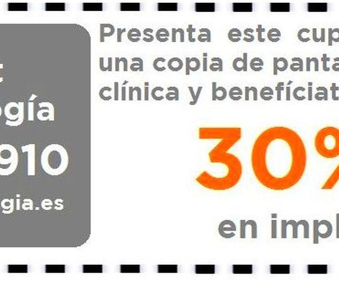 Descuento WEB 30 % implantes dentales Valencia