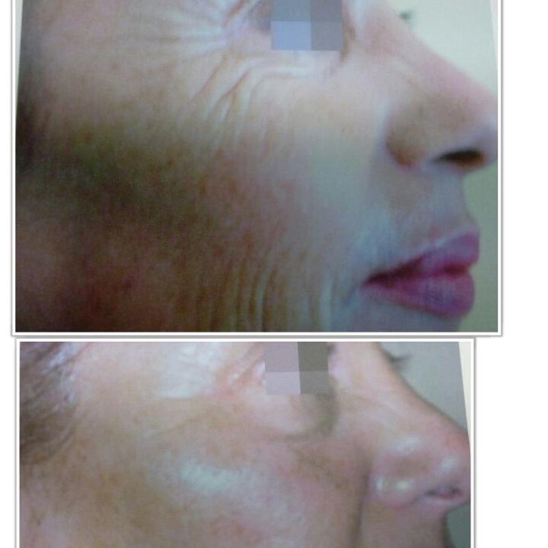 Rejuvenecimiento facial: Servicios de Salón de Belleza Sukaro