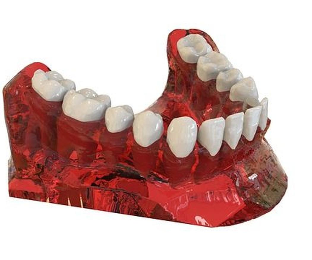 Despeja tus dudas sobre los implantes dentales