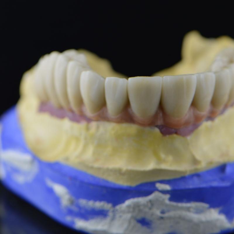 Prótesis dentales: Productos y servicios de Tecnolab Dental Galicia