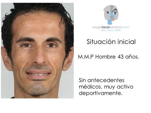 Videos de Protésicos dentales en Benidorm | Laboratorio y Centro de Fresado Dental Alejandro Caballero