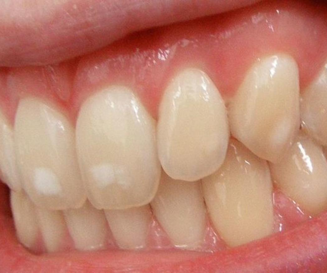 Las causas de las manchas en dientes