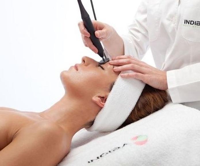 Tratamientos faciales INDIBA Estela