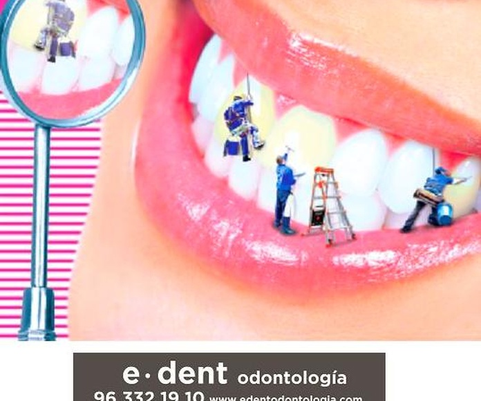 Importancia de una limpieza dental anual. Blanqueamiento dental en Valencia.