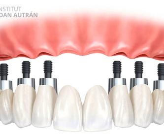 Periodoncia: Tratamientos de Cliesdent Clínica de Especialistas Dentales - Nueva Dirección!