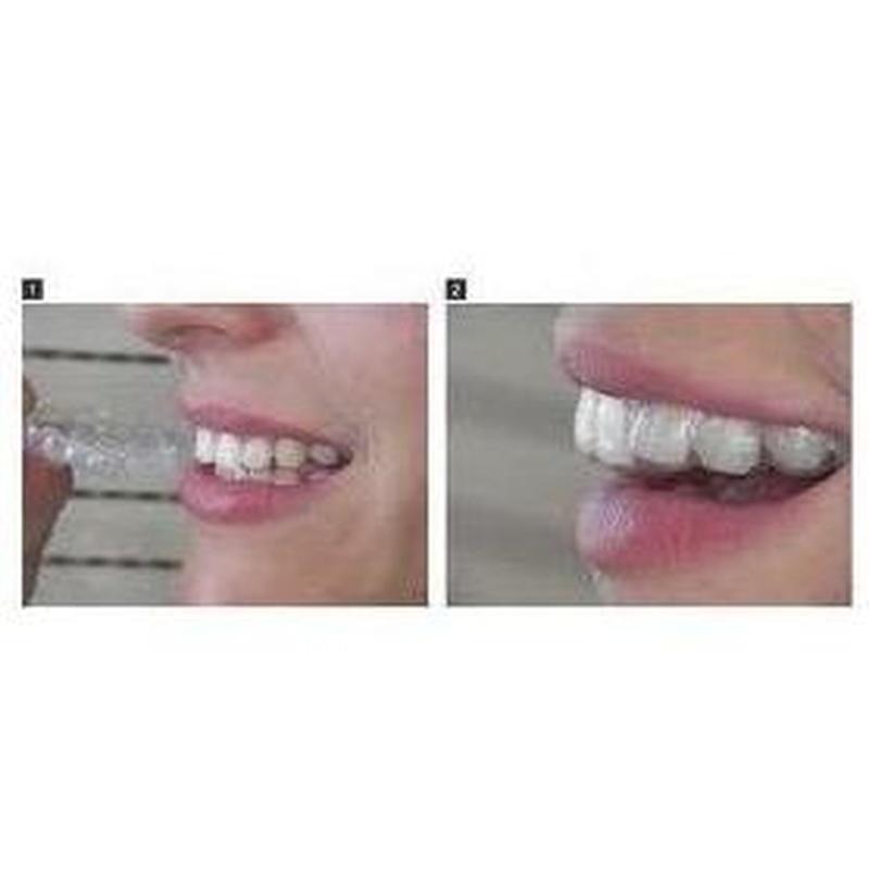 Ortodoncia: Tratamientos de Centro Dental Innova