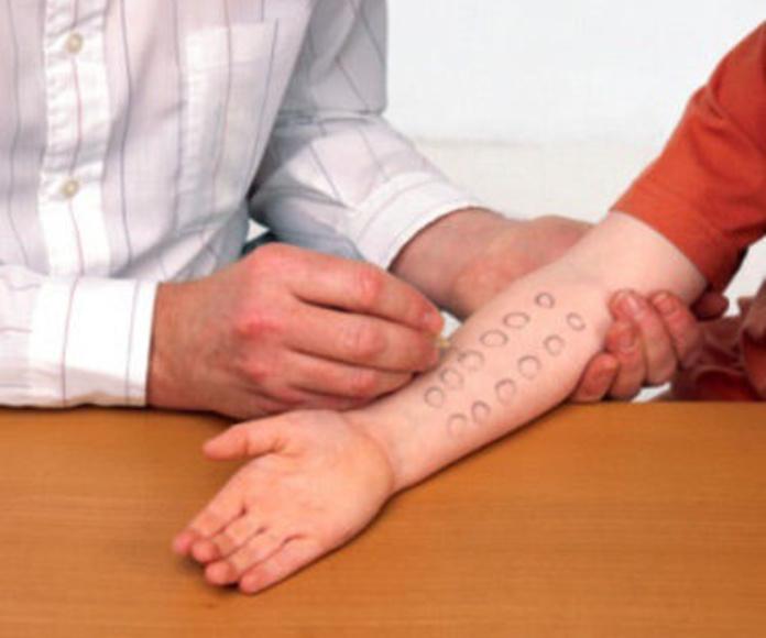 ALERGIA A ALIMENTOS : Tratamientos de Alergia y Asma Casa de Salud. Dra Valentina Gutiérrez