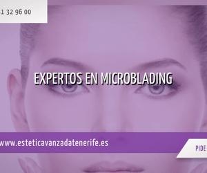 Medicina estética en Tenerife: Estética Avanzada Tenerife