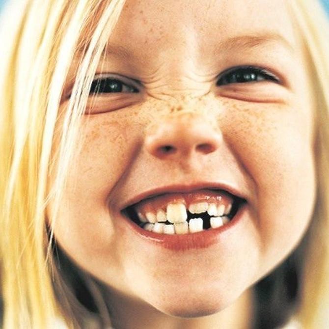 Tratamientos de ortodoncia invisible