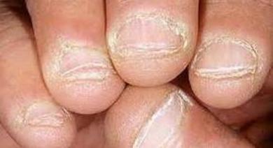 Onicofagia y Tricotilomania
