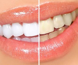 Reconstrucción estética dental: Catálogo de Centro de Salud Dental FamilDent