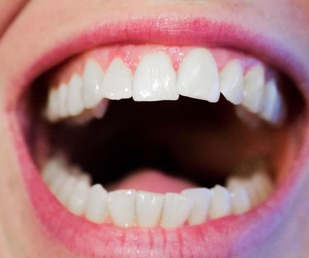 ¿Es necesario arreglarse la boca?