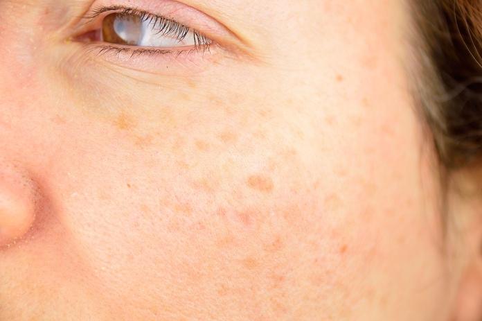 Eliminar manchas en la piel: Tratamientos de Centro Dermatológico Verónica Díaz