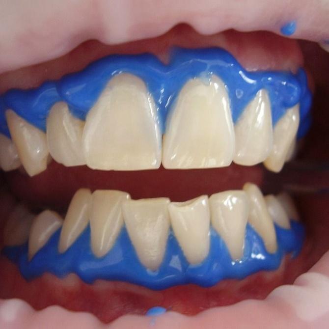 Conoce en qué consiste la técnica del blanqueamiento dental