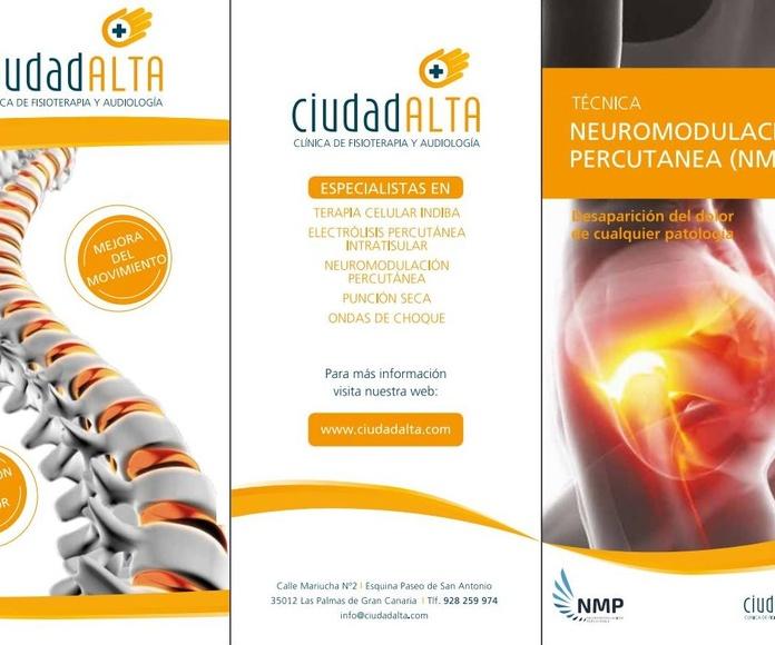Neuromodulación Percutánea (NMP)