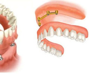 Implantes dentales, dentadura completa sobre implantes