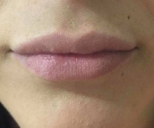 Aumento de labios.
