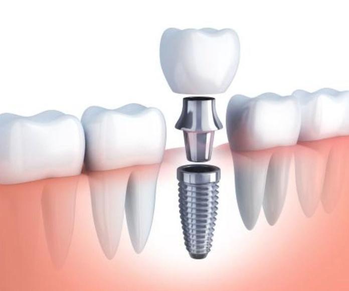 Implantes de carga inmediata, como salir del dentista con el diente puesto