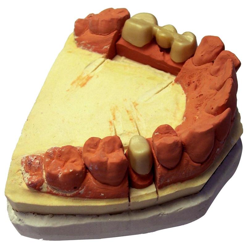 Prótesis fija y removible: Tratamientos de Clínica Dental Rafael Menendez
