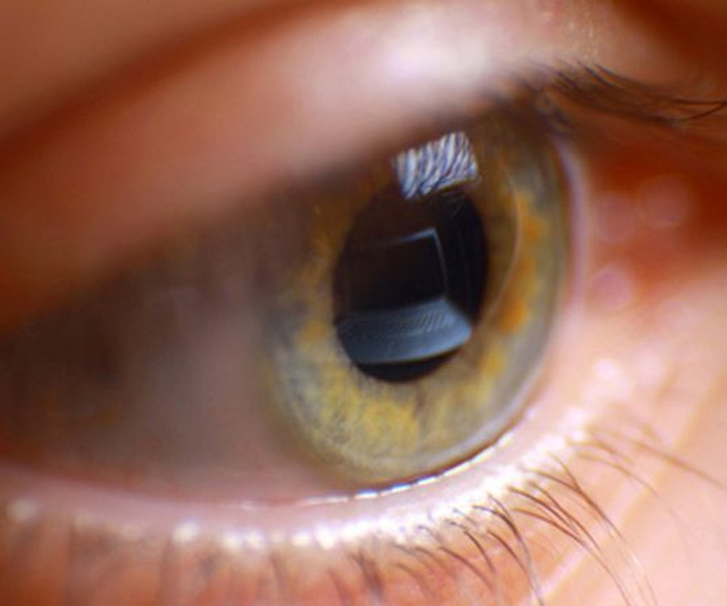 Glaucoma: grupos de riesgo y síntomas