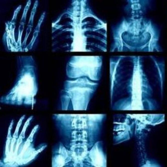 Algunos mitos relacionados con los rayos X