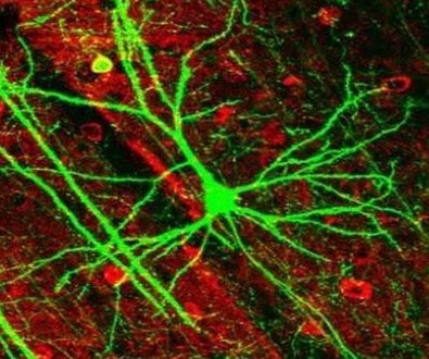 """Una terapia celular """"congela"""" la progresión de la escleroris múltiple durante más de cinco años"""