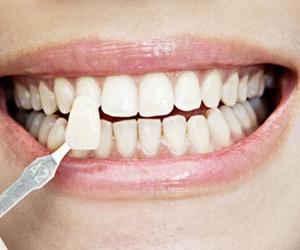 ¿Conoces las ventajas de los implantes dentales?