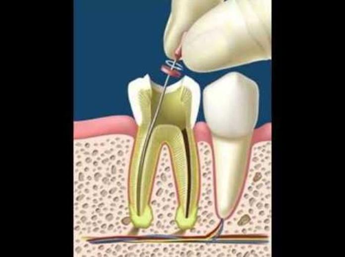 Endodoncia: Tratamientos dentales de Clínica Dental Viché y Gutiérrez