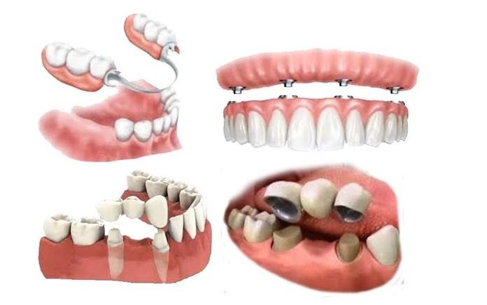 Rehabilitación oral: Tratamientos dentales de Clínica Dental Flores