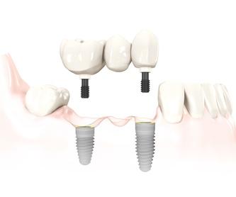 Odontología general e implantes: Especialidades de Dra. Silvia Ruiz Bernal
