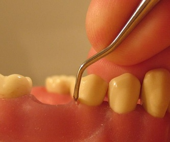 Estética dental: Especialidades de Clínica Dental Virgen de la Victoria. Dr. Leopoldo Hernández