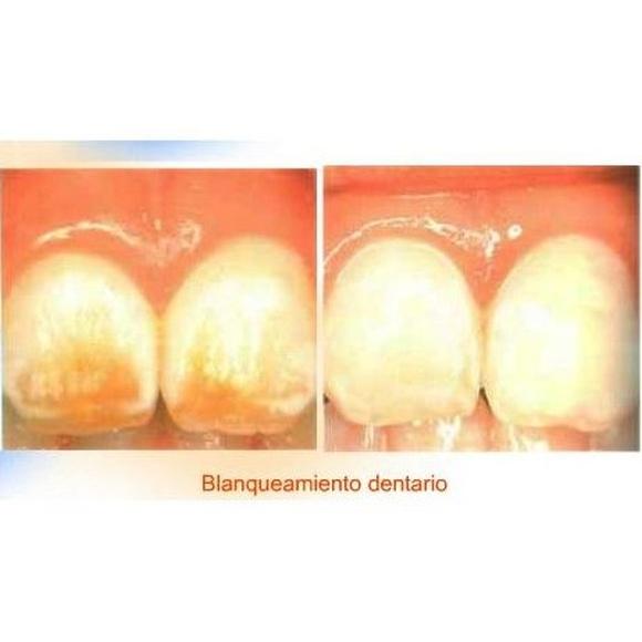 Blanqueamiento dentario: Tratamientos y Servicios de Clínica Dental Censadent