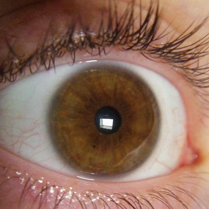 La iridología como alternativa de diagnóstico