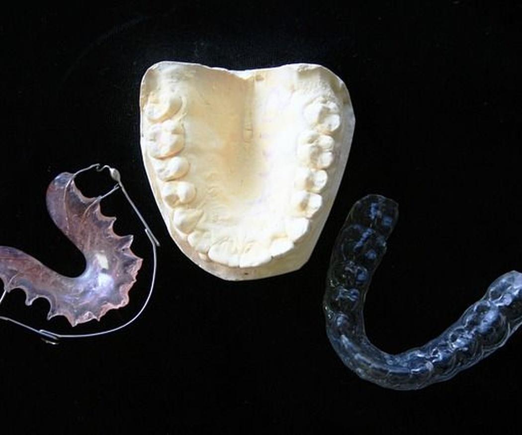 El mantenimiento en las ortodoncias