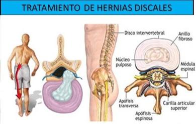 Hernia discal, tratamiento y recuperacion